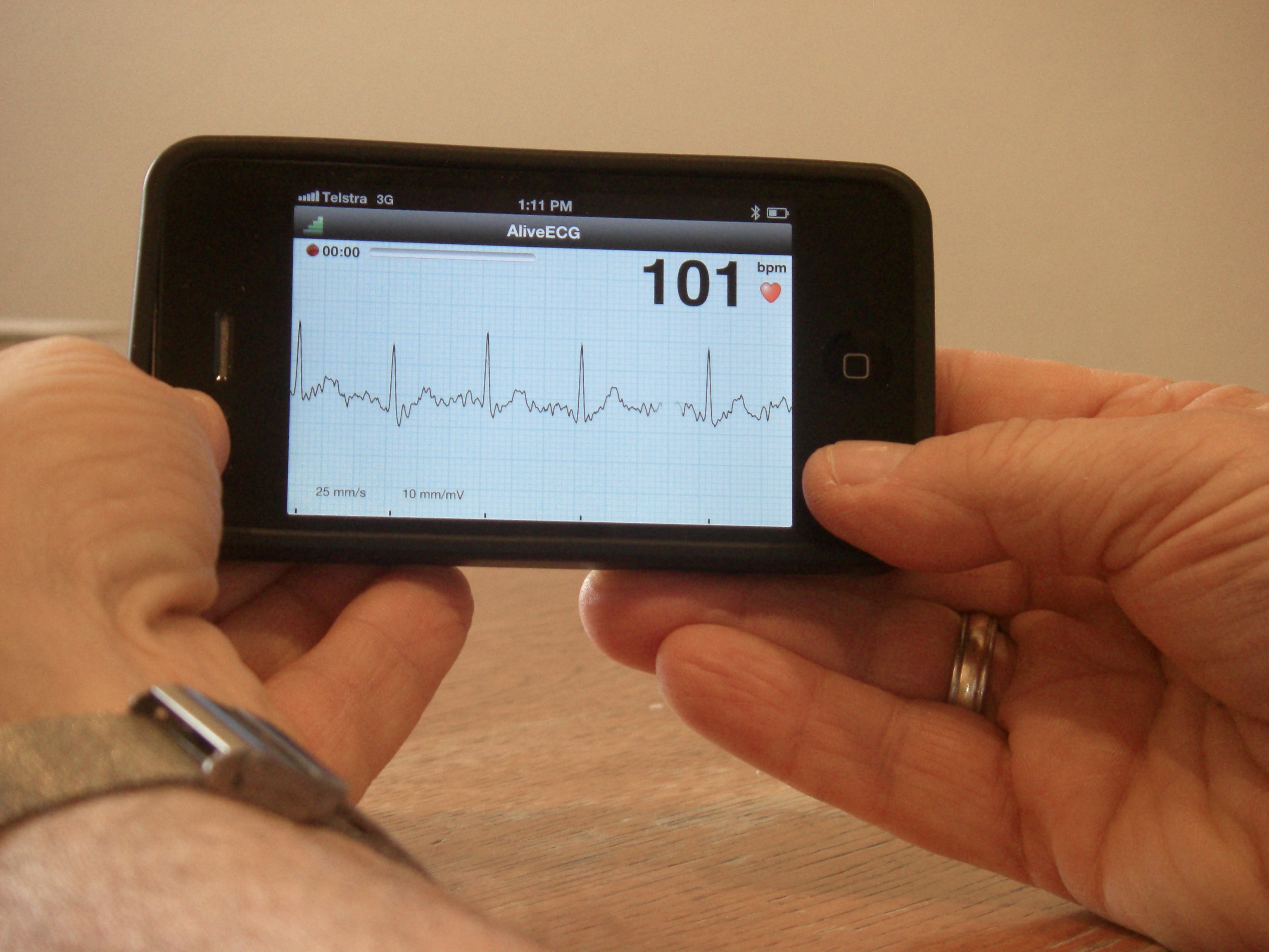 iPhones to detect risk of stroke