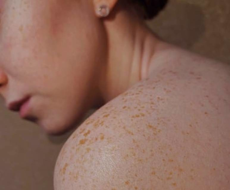 Taking Skin Health Seriously
